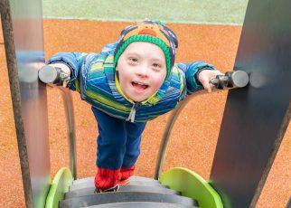 Gangguan Pendengaran Pada Anak Down Syndrome