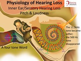 Apa yang dimaksud dengan Gangguan Pendengaran | hearing-loss